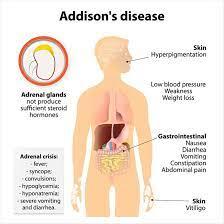 Treating Addison's Disease