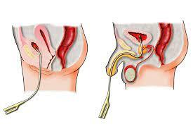 Catheter Associated Urinary Infection (CAUTI)