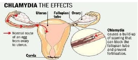 chlamydia effects